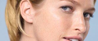 Сухая кожа: лица, рук, стопы, причины, лечение