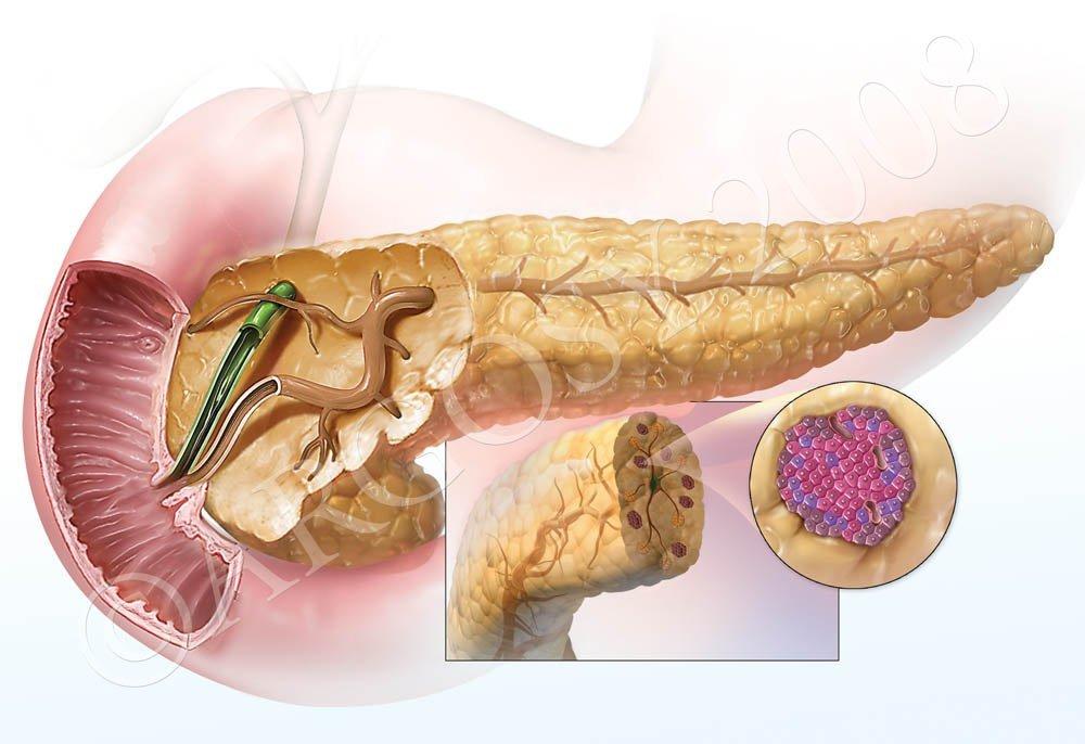 Компенсирует нарушение работы поджелудочной железы