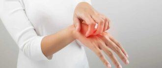 Экзема: на руках, пальцах, лице. Симптомы, диагностика, лечение.