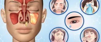 Аллергический ринит: причины, симптомы, у ребенка и у взрослых