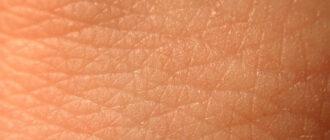 Эпидермис кожи: слои, функции, особенности, патологии