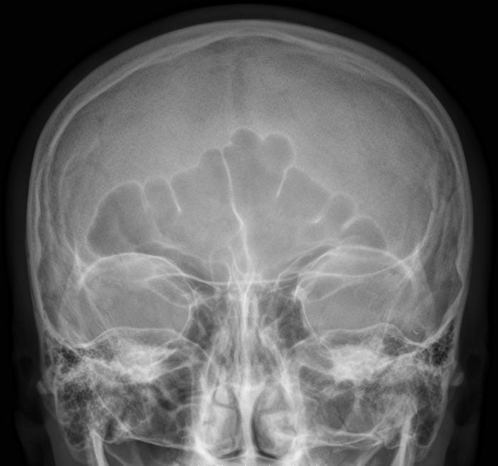Для выявления причины нужна рентгенодиагностика