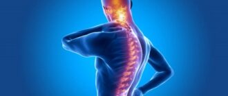 Болезнь Бехтерева: причины, симптомы, диагностика и лечение