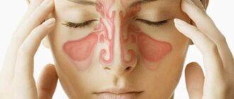 Синусит: симптомы, причины, диагностика, лечение и осложнения