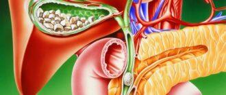 Желчнокаменная болезнь: причины, симптомы, диагностика и лечение