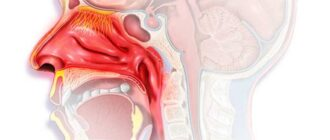 Ринофарингит: симптомы, причины, у детей, диагностика и лечение