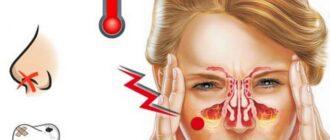 Лечение гайморита: медикаменты, процедуры, в домашних условиях