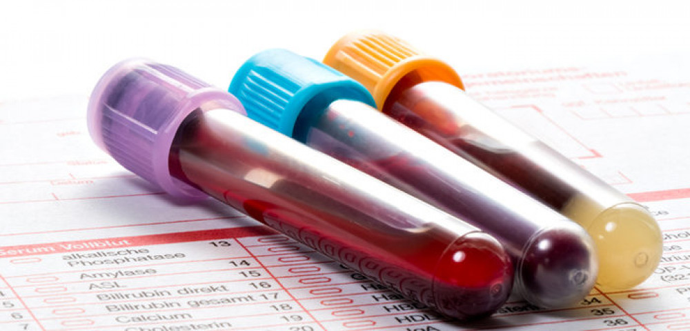 Перед лечением оценивают уровень компонентов крови