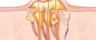 Фурункулез: причины, диагностика и методы лечения