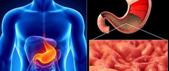 Профилактика хеликобактер пилори: лекарства, обследования и рекомендации