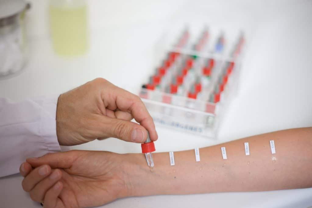 Тест на аллергены проводится спустя несколько дней после отмены приема средства
