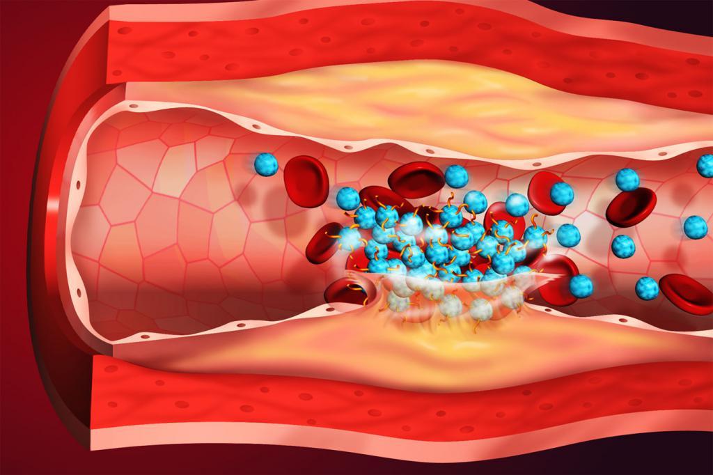 Нужен для устранения тромбов и восстановления кровотока