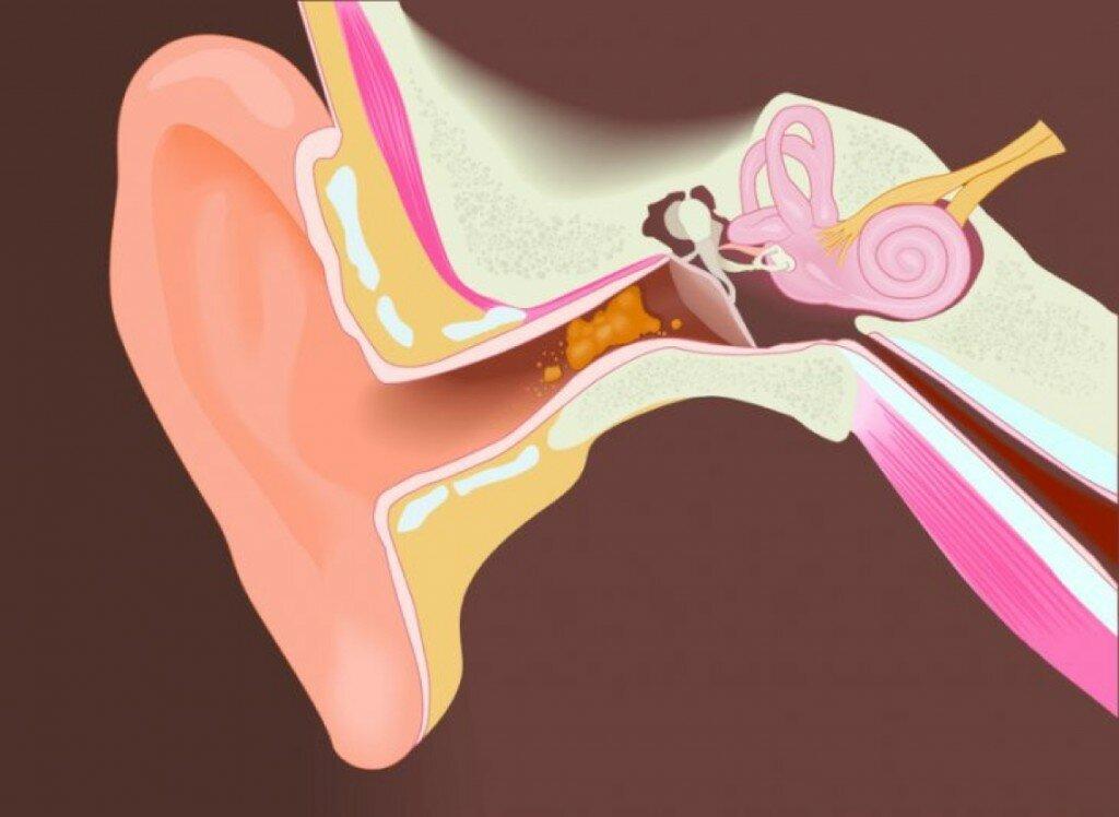 Закупорка слухового прохода