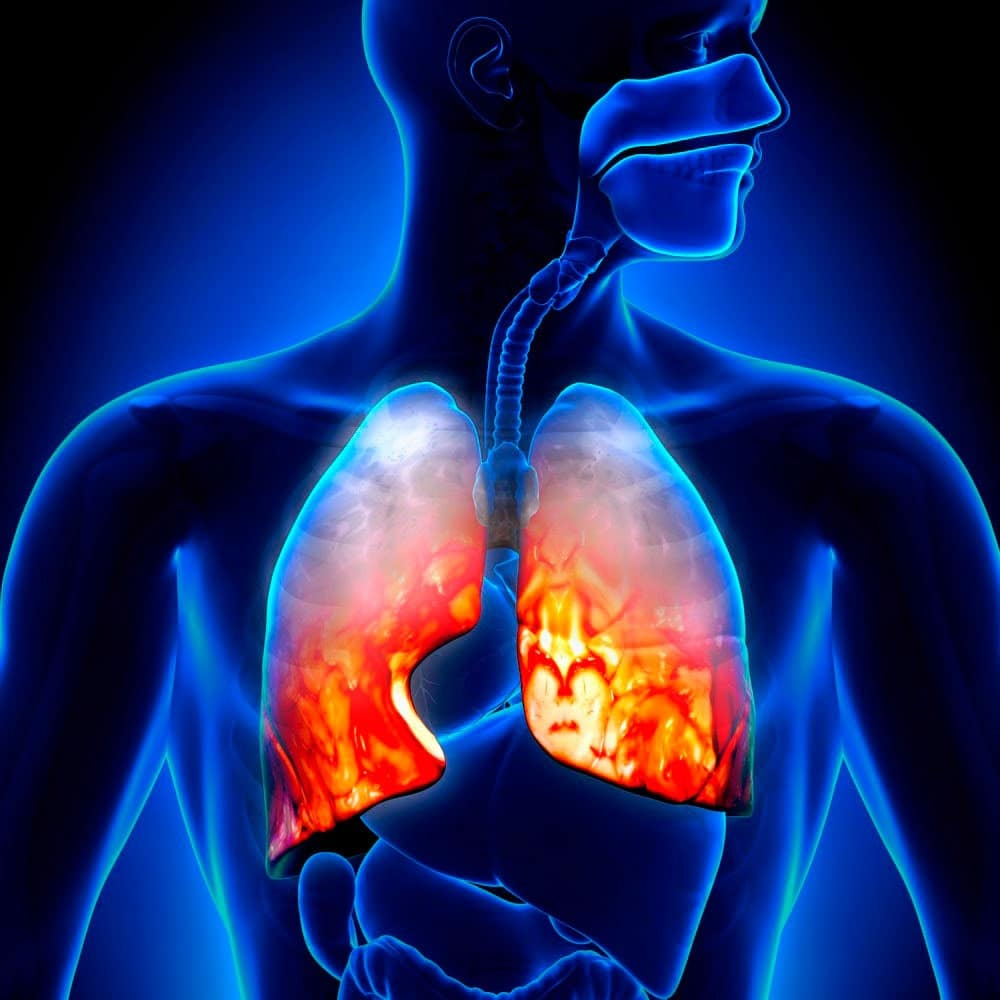 Пневмония иногда заразна
