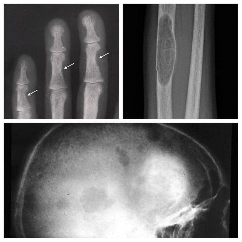 Мимпара предотвращает развитие осложнений со стороны костей