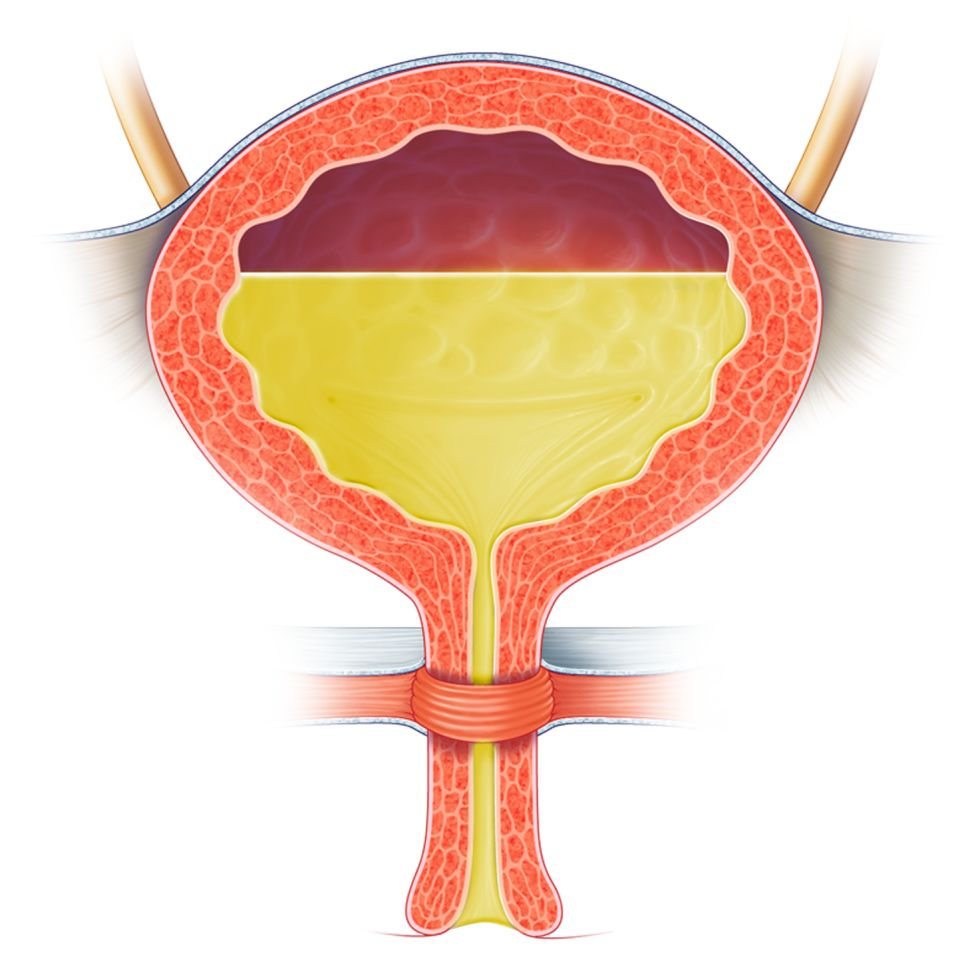 Бетмига помогает при гиперактивном мочевом пузыре