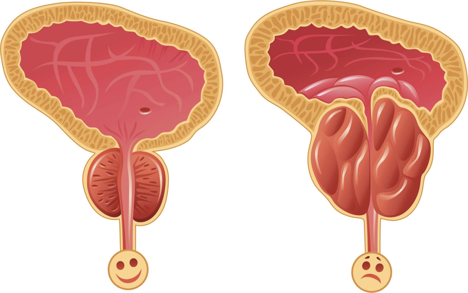 Устраняет гиперплазию