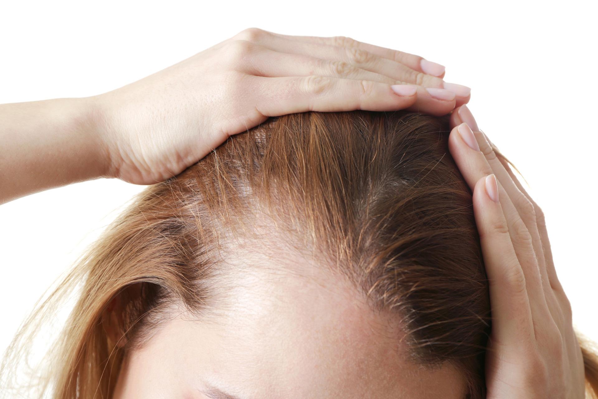 После коронавируса выпадают волосы