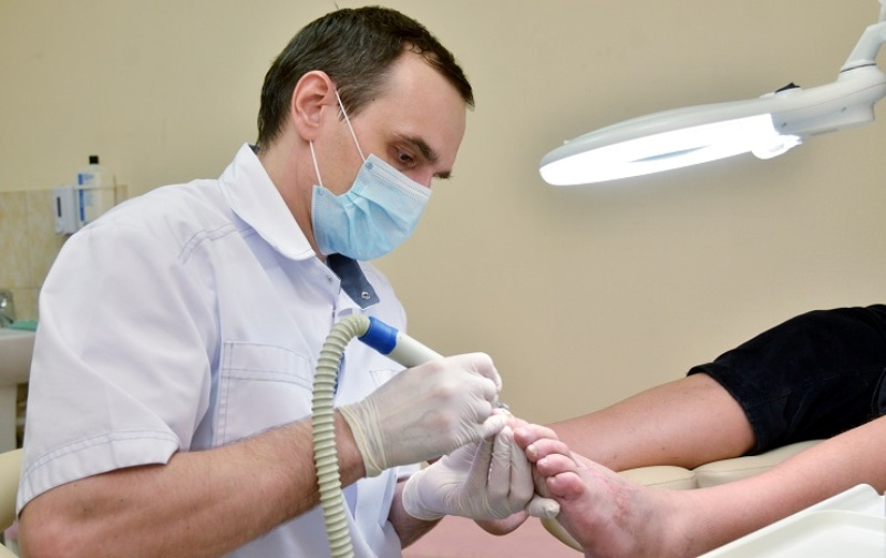 Часто микологи лечат ногти при грибке этим лекарством