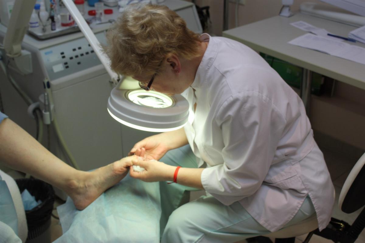 Грибковый ноготь видно при грамотной диагностике